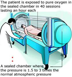 Imagine from the International Hyperbaric Association.